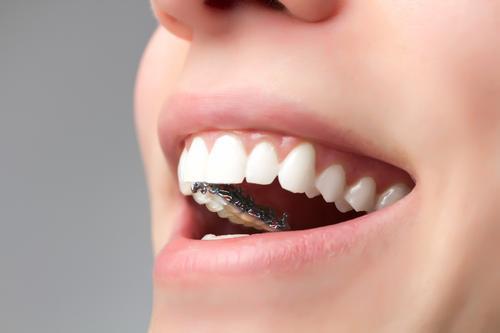 瑞通生物获KIP资本领投数千万 3D打印+舌侧隐形矫治技术服务国内外市场